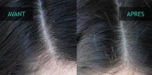 Avant après pellicule cheveux