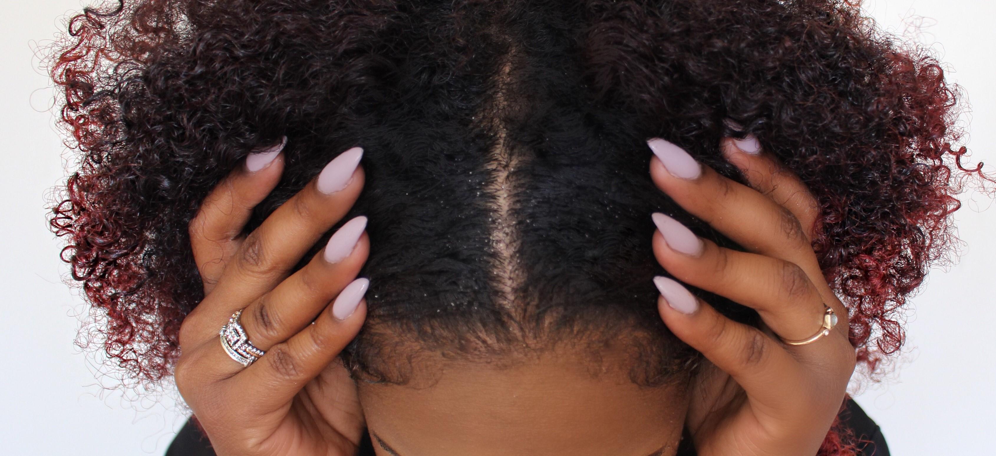 comment soigner les pellicules dans les cheveux