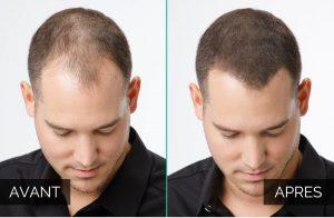 poudre cheveux avant après