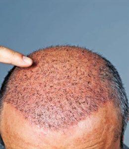 greffe cheveux turquie prix