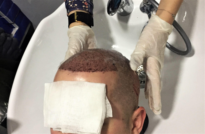 quel shampoing utiliser apres greffe de cheveux