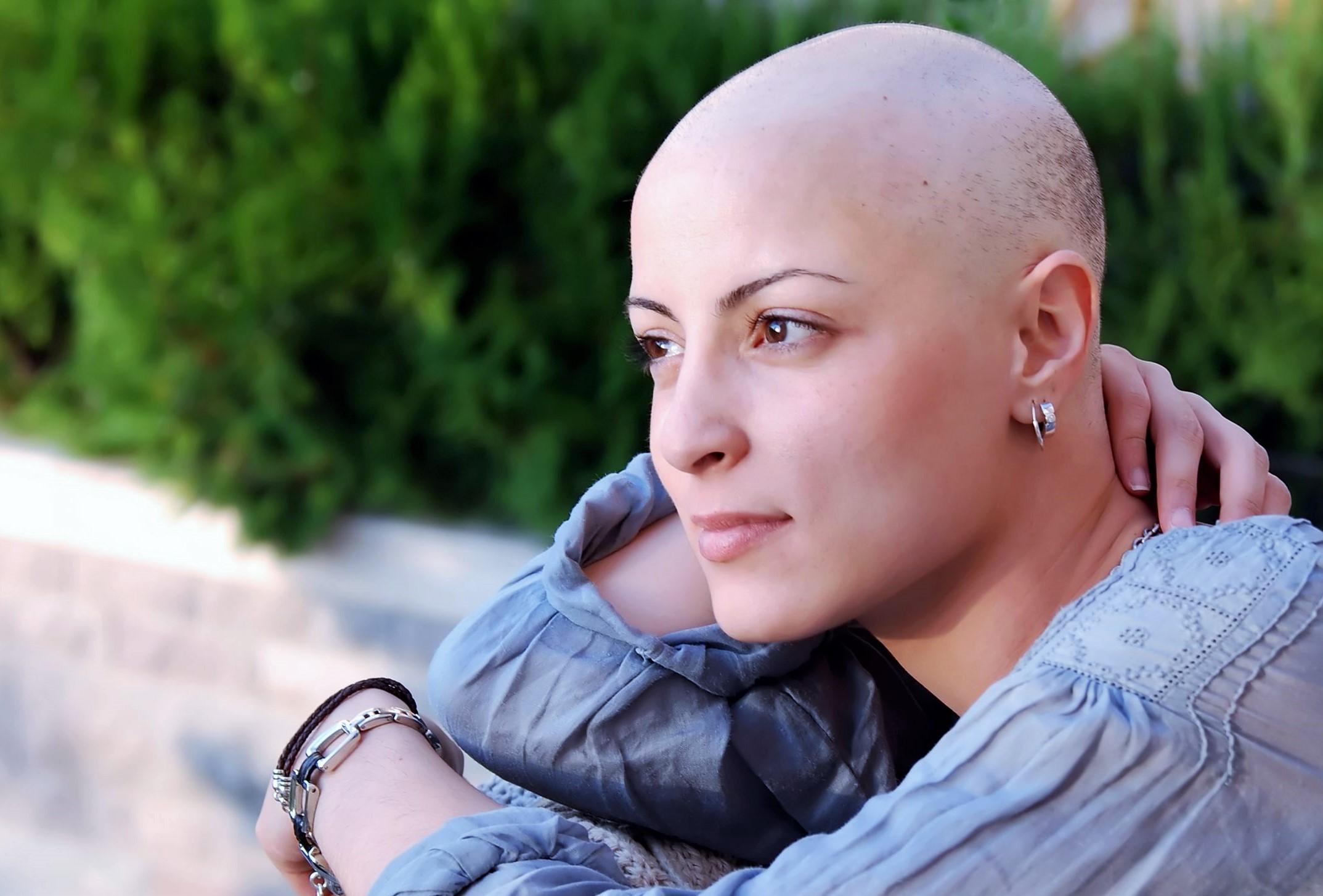Alopécie chimiothérapie