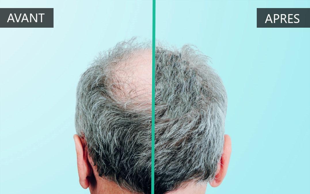 Avant après greffe cheveux hongrie