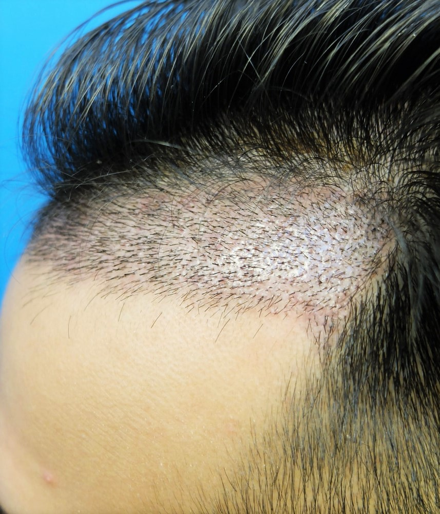 Greffe cheveux après 1 an