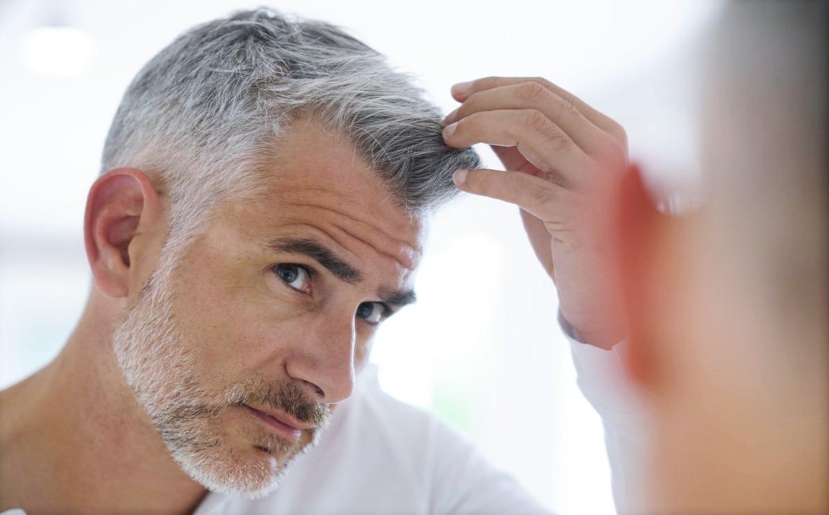 greffe de cheveux après 10 ans